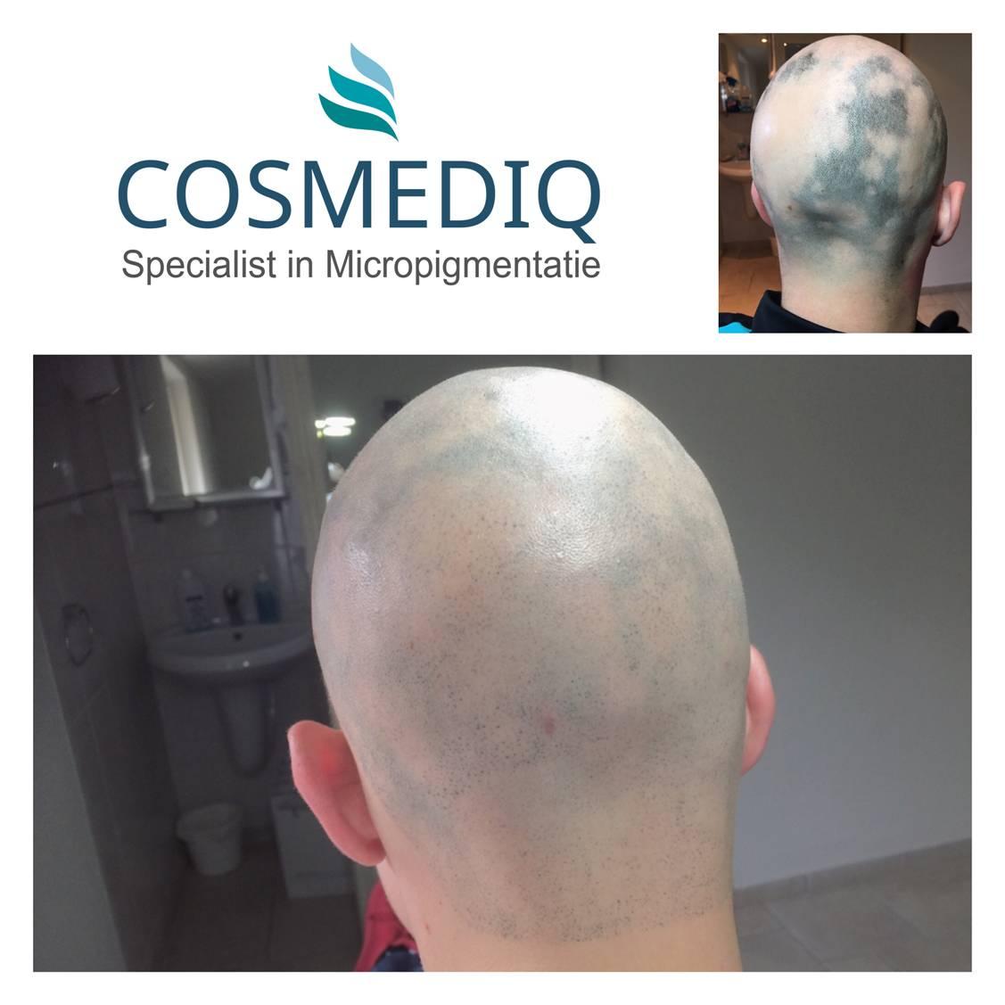 scalppigmentatie cosmediq
