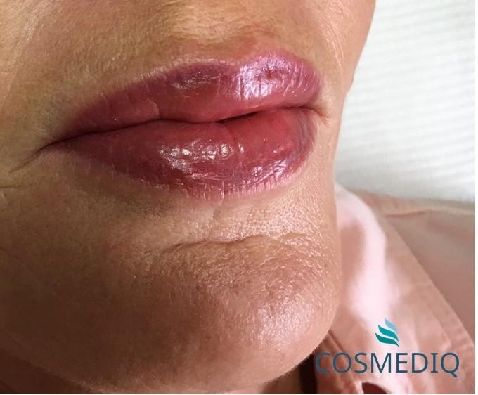 cosmediq permanente make up lippen