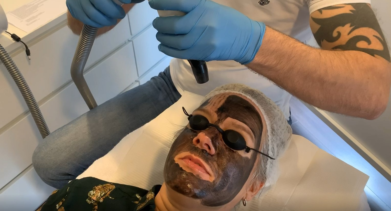 carbon laser peeling cosmediq