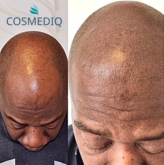 cosmediq scalppigmentatie pmu