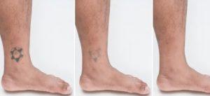 tatoeage verwijderen enkel
